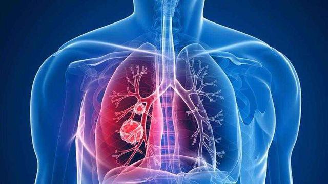 每分钟有4人因癌症去世,预防癌症减少发病率,从做这3件事开始