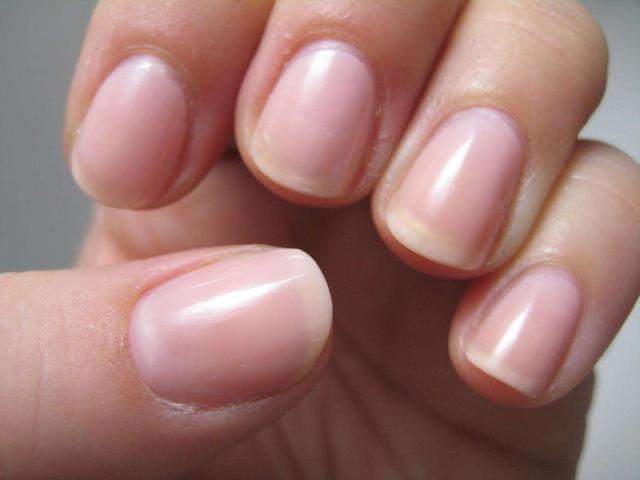 指甲凹陷下去是病吗?指甲长成这几种样子,说明你身体状况不太好
