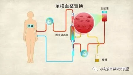 療法 血漿 交換
