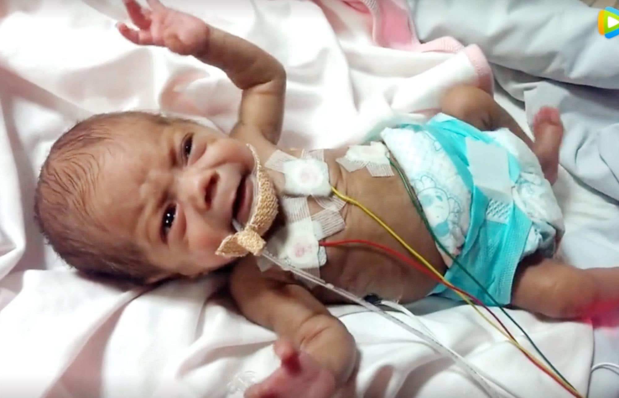 29周早产儿全身插满管子,哭起来胳膊都在颤抖,看着好心疼