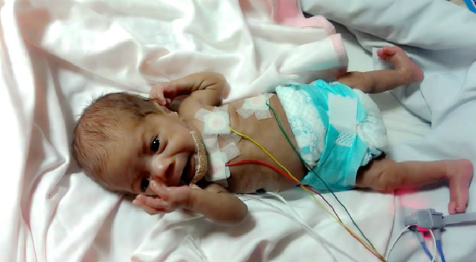 29 week premature baby was full of tubes, crying, arms trembling, looking distressed
