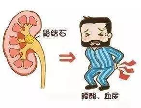 尿色發紅是血尿?出現血尿就是腎炎?