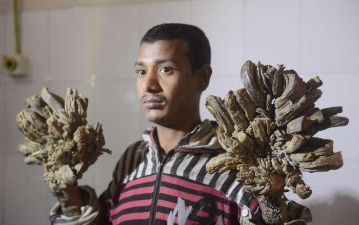 """孟加拉國現""""樹人""""小伙,手腳長樹根,善良游客籌錢為其治病"""