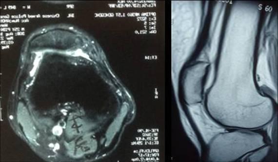 健康 正文  阻抗实验(+),摩擦音或有膝关节伸不直(图3)x线,ct,mir的