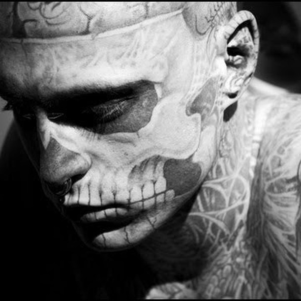 让雅诺秀帮您无痛去纹身.图片