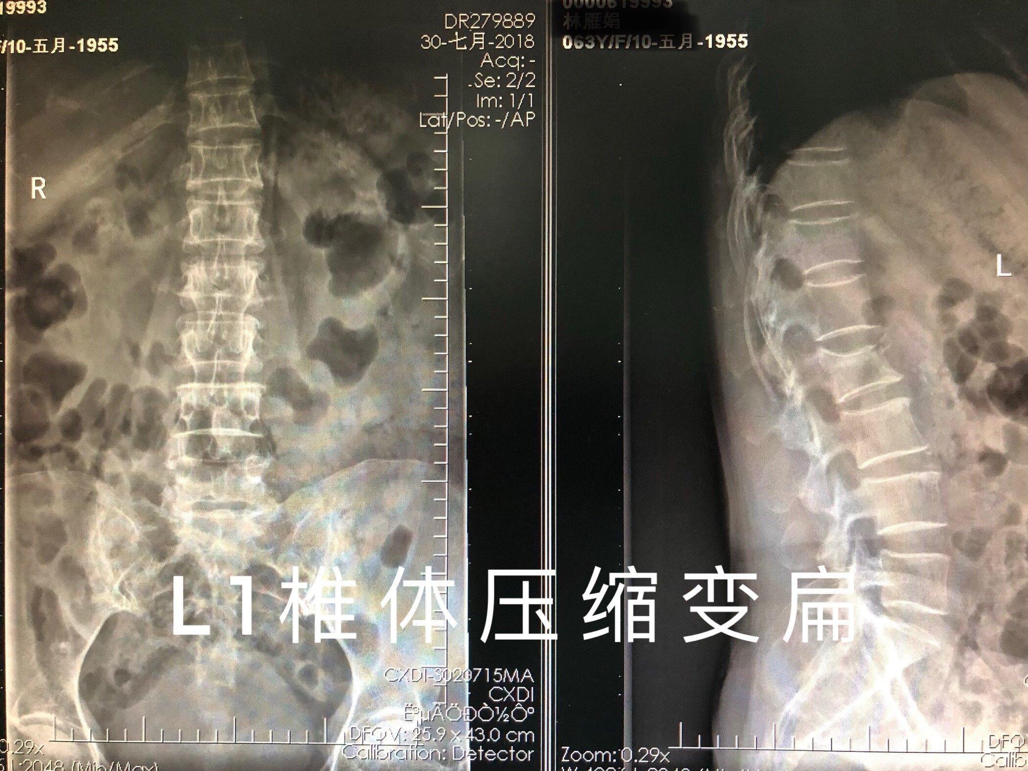 腰椎骨压缩性骨折图片