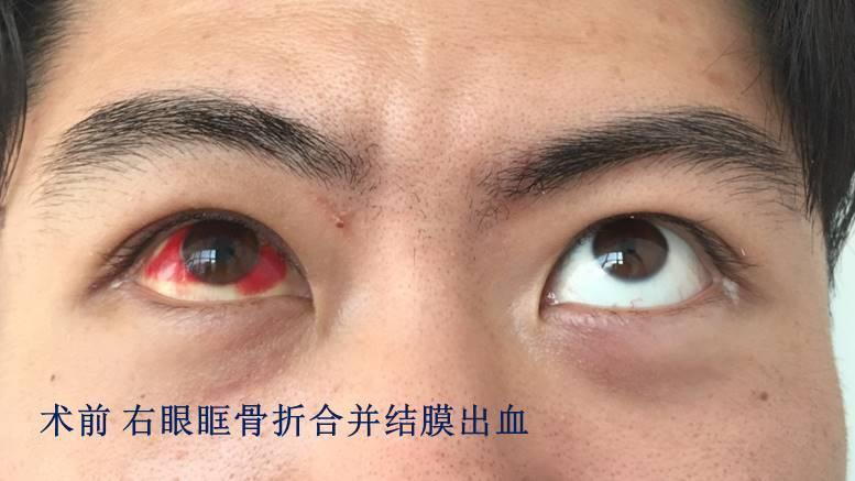 眼眶骨折术后眼白发黄发红多久能恢复