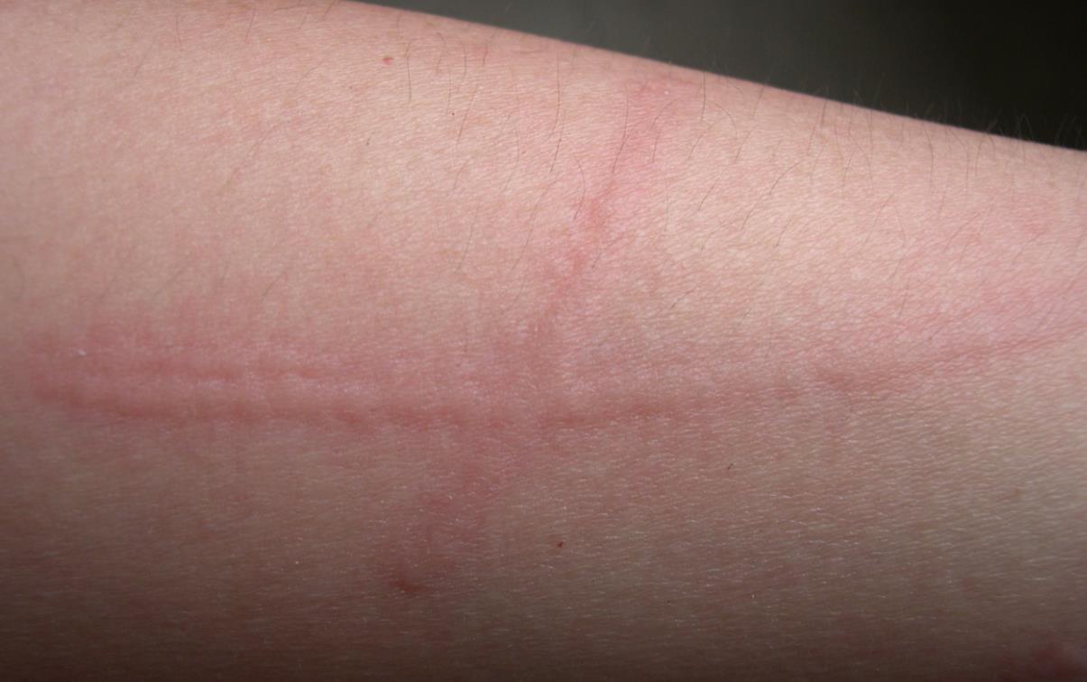 划痕性荨麻疹怎么治疗_妈妈网小百科
