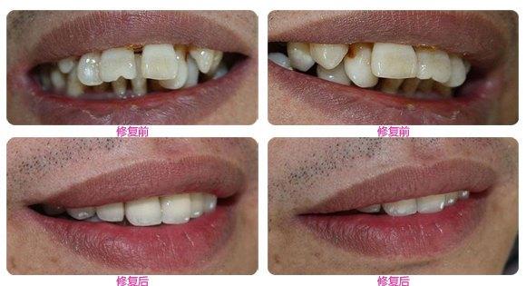牙套是什么原理_什么是牙套脸图解