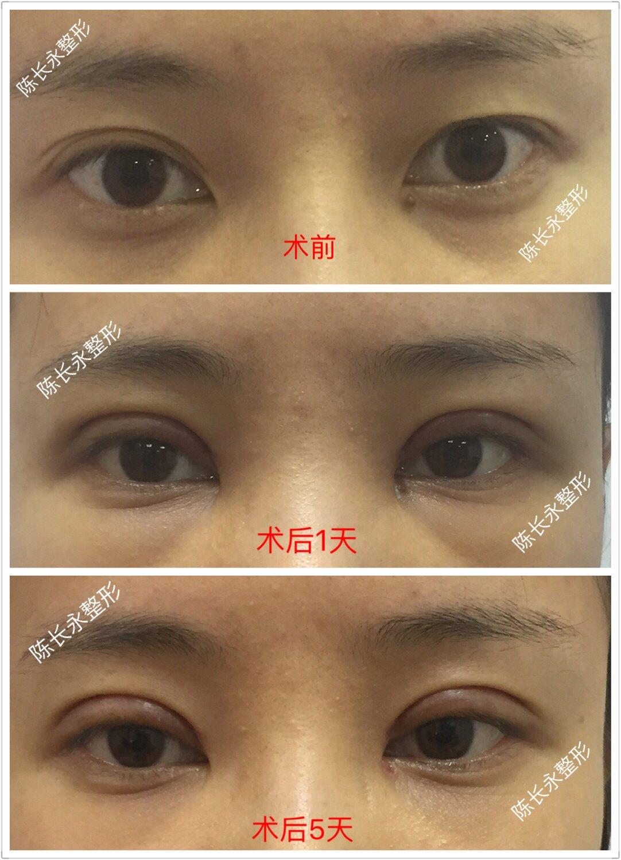 双眼皮宽改窄案例图片