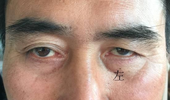 眼眶骨折术前术后视物重影的解答