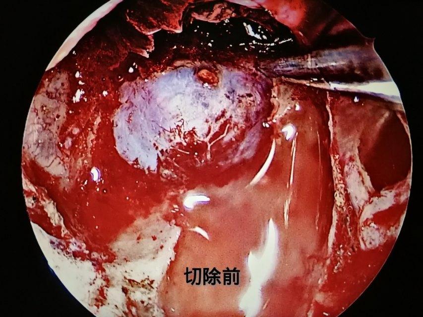 责 :   长征医院神经外科是国内较早开展神经内镜手术治疗垂体瘤的单位,对于垂体巨腺瘤,侵袭性垂体瘤,功能性垂体瘤的内镜治疗具有丰富经验,下图为最近在我科应用神经内镜治疗的一例垂体瘤患者,术后肿瘤全切,垂体功能正常,治疗效果满意.