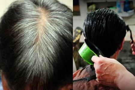 白发转黑发加盟,什么情况容易生出白发?_头发图片