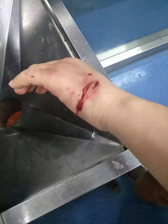 溫州流浪狗24小時咬傷76人!集中在3個區域,已有肇事犬被抓捕