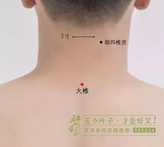 大椎血是人体哪个位置_这十二条阳经均与督脉相交于大椎穴,而督脉是人体阳气之总督,运行着