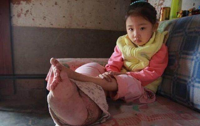6歲女孩腿粗如柱,醫生檢查後,怒斥家長不負責任