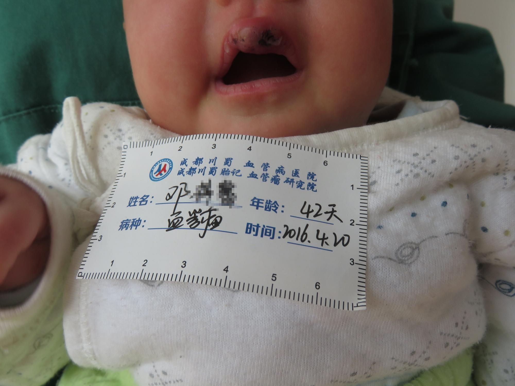 刚出生宝宝发现有血管瘤,要不要紧 婴儿血管瘤初期图片一览