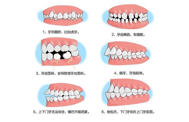 什么因素会导致儿童牙齿排列不整齐?