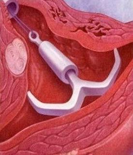 如果你知道上环相当于每个月刮宫?你还纠结去上环吗?