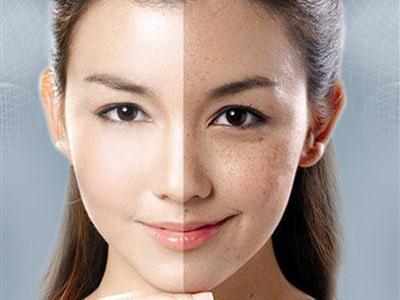 皮肤管理:如何根据肤色来美白