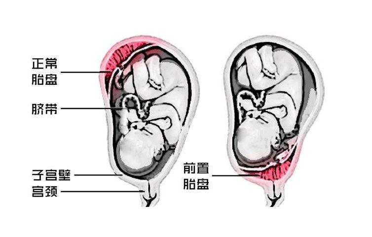 胎盘前壁和后壁哪个安全?孕妇看了才安心