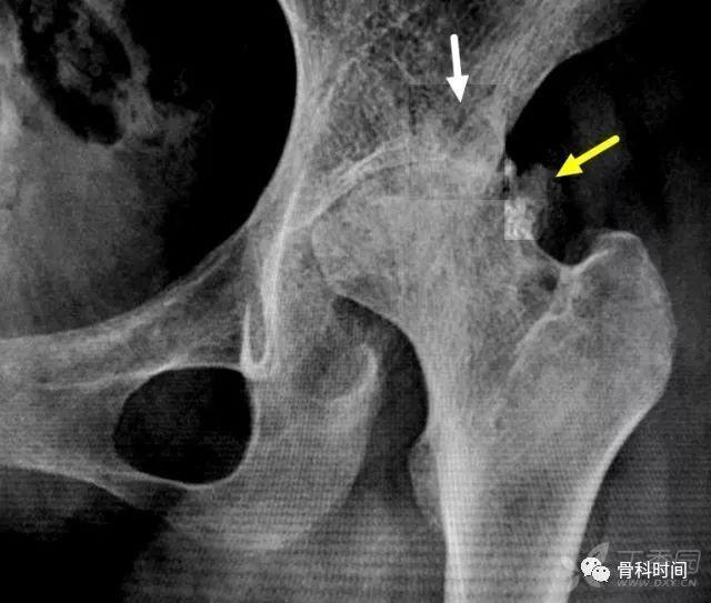 左髋关节骨性关节炎_髋部疼痛 2 年,关节间隙近似消失,考虑什么病?_股骨头