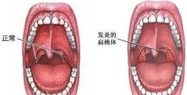 欧美av美穴_每日一穴|中医缓解嗓子干痒的穴位——甜美穴