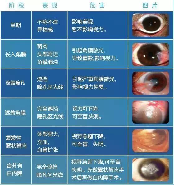 白眼球上长了胬肉图片_胬肉的治疗方法