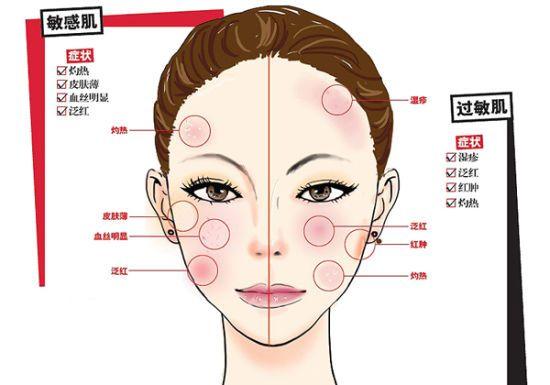 皮肤管理:敏感肌也要过冬,学会护理方法