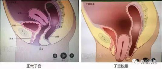 女阴比喷尿_常见原因为盆底肌松弛,膀胱颈和尿道近端过度下移,尿道括约肌功能障碍