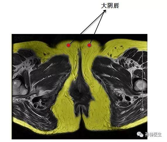 医学笔记︱锋哥教你读盆腔核磁共振 1 女性经大阴唇和阴蒂的横断层