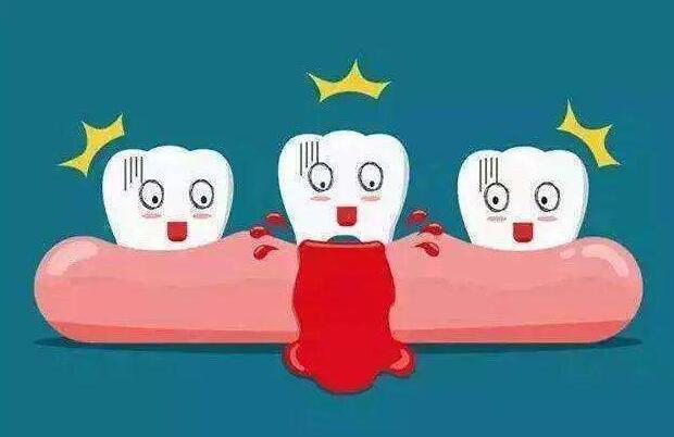 牙龈出血可能是疾病的信号