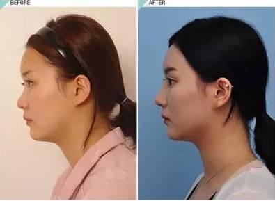 鼻综合手术_鼻综合手术后,会出现鼻孔不对称吗?