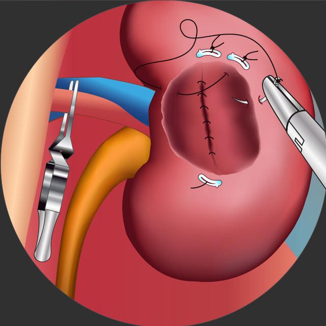 """本次比赛分为""""泌尿系结石教程视频大赛""""和""""泌尿系经典创新手术视频6.0foxpro病例结石图片"""