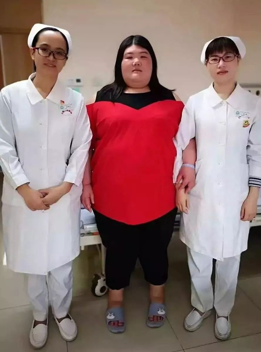 """336斤!""""中山第一肥妹""""成功实施减重手术!"""