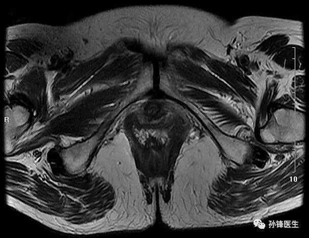 医学笔记︱锋哥教你读盆腔核磁共振 3 经女性耻骨联合下份的横断层