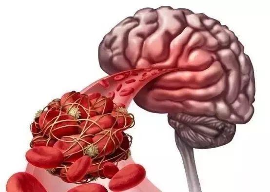 血栓是吃出来的,这四种食物最好少吃或不吃!
