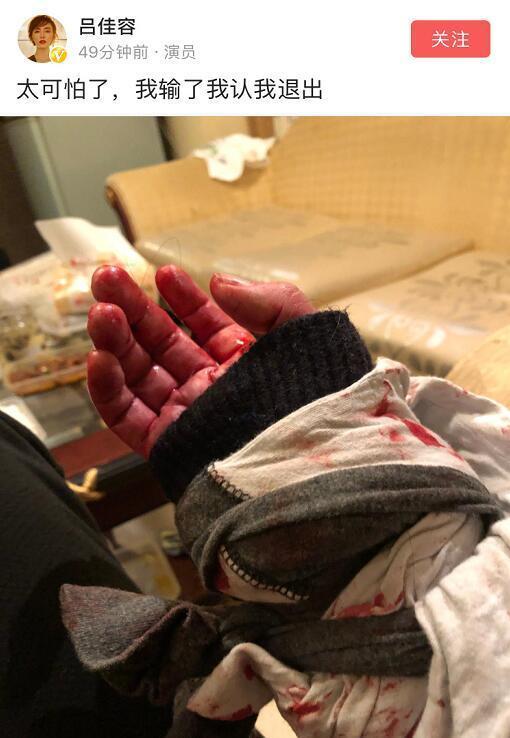 但在今年5月1日凌晨,吕佳容连发数条微博,还附上了手腕受伤的照片,她