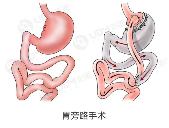 胃轉流手術與胃切除手術哪個好?