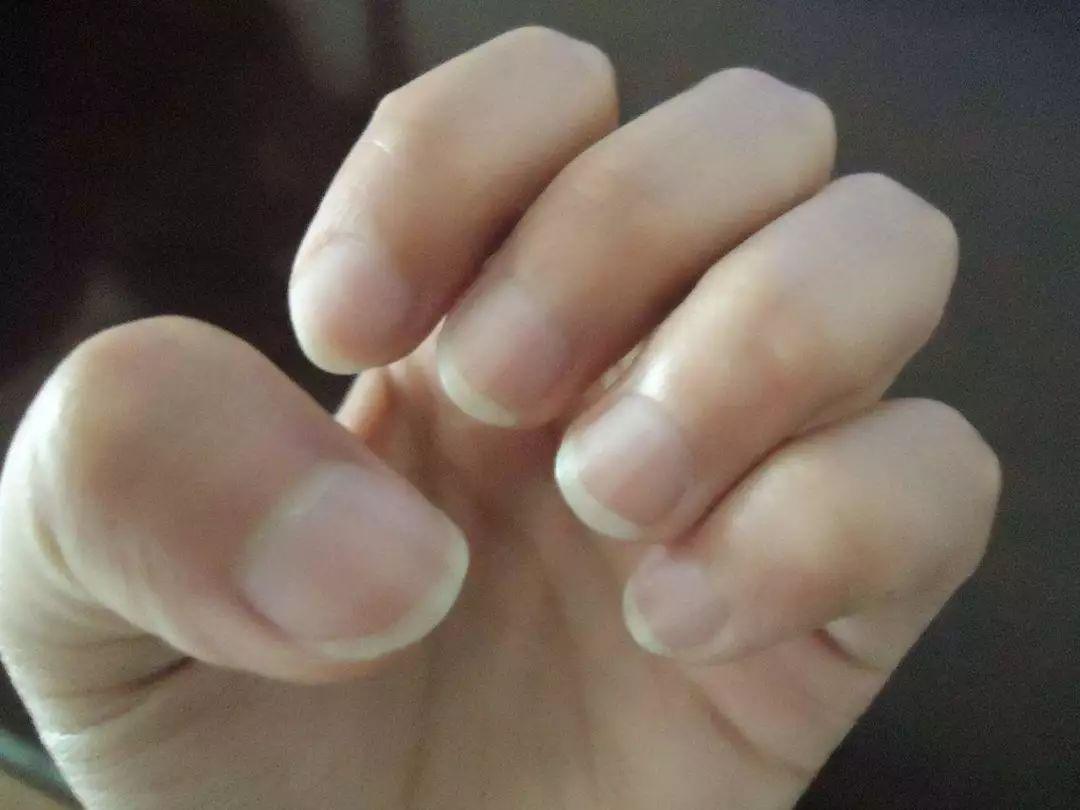 指甲出现这种变化要注意 竟然是身体在求救