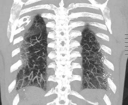 相反,npo影响肺泡间隙,优选下肺叶,并且在被动充血的临床环境中遇到图片
