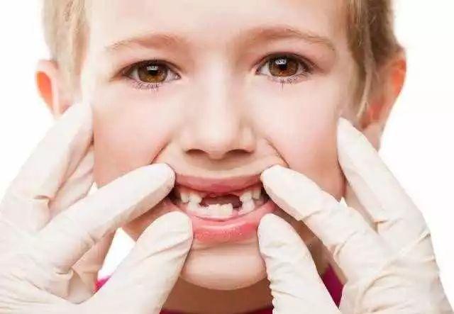 宝宝有蛀牙_宝宝从小就有刷牙的好习惯,依旧是长了蛀牙,这是怎么回事?