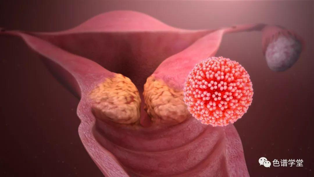 健康 正文  癌症的原因 癌症的原因可能是 遗传的,或由 环境引发的