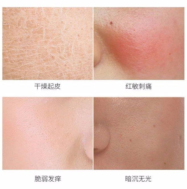 容美泉|有效解救肌肤敏感干燥,神经酰胺到底多神奇?