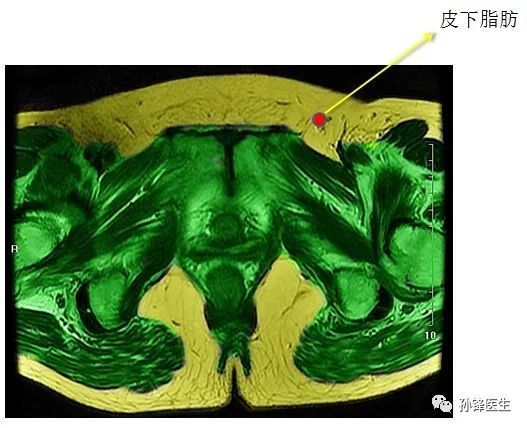 医学笔记︱锋哥教你读盆腔核磁共振 4 经女性耻骨联合中份的横断层