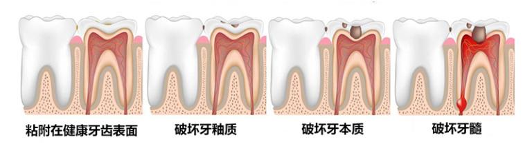 科学实测电动牙刷哪个值得买,选出最值得买