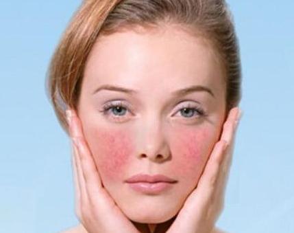 激素脸可以自愈吗?如何正确护理?