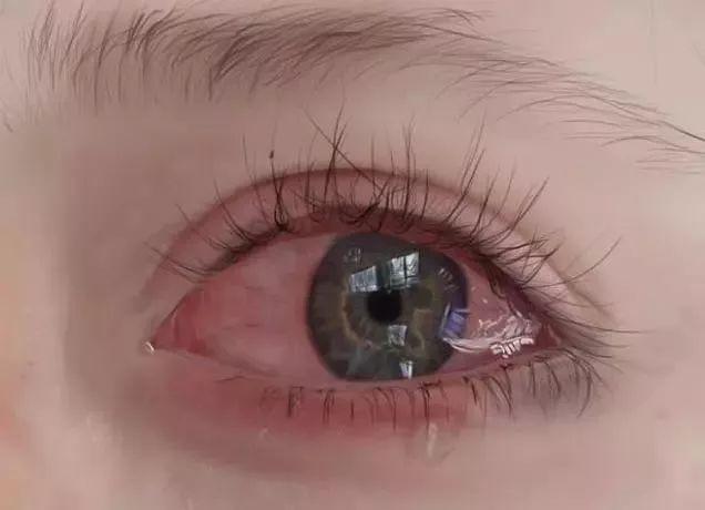 哪只眼睛刚哭过?测出你这些年受过的委屈!