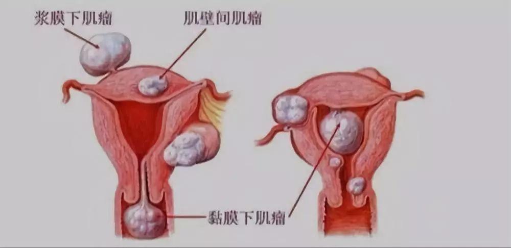 子宫肌瘤是什么?女人宫颈炎不能吃的食品有?