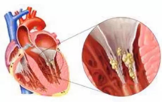 心 炎 膜 感染 性 内 心内膜炎について